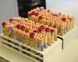 imagem do post do Imunidade alta face às doenças do Programa Nacional de Vacinação