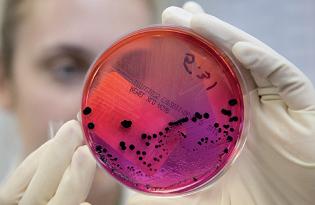 imagem do post do Investigação laboratorial de surtos de toxinfeção alimentar: dados referentes a 2017