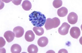 """imagem do post do Curso """"Malária: Diagnóstico microscópico de A a Z"""""""