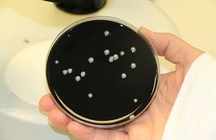 imagem do post do Prevenção e Controlo Ambiental da bactéria Legionella em Unidades de Saúde