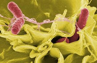 imagem do post do Infeções Gastrintestinais: vigilância epidemiológica de base laboratorial de agentes bacterianos e virais