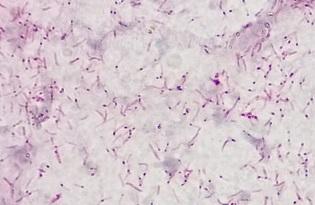 imagem do post do Nova era na vigilância da tuberculose multirresistente em Portugal: sequenciação do genoma completo