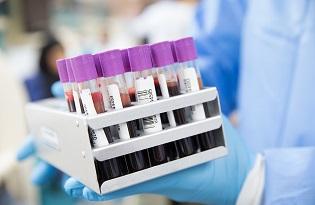 imagem do post do Instituto Ricardo Jorge colabora em estudo internacional sobre Hipercolesterolemia Familiar